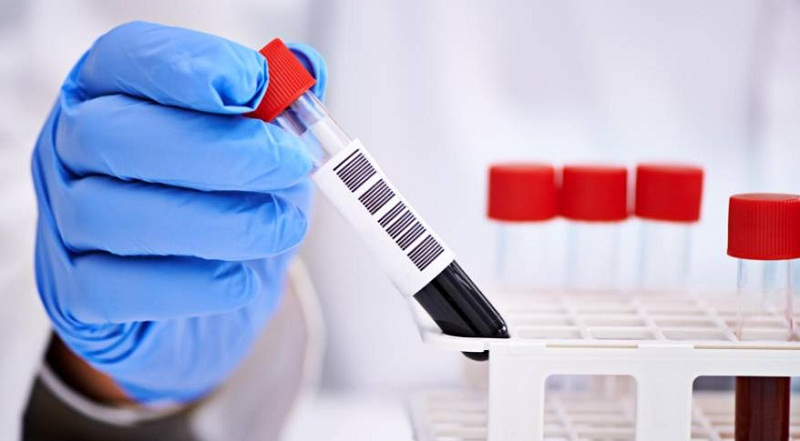 анализ крови при болях в желудке