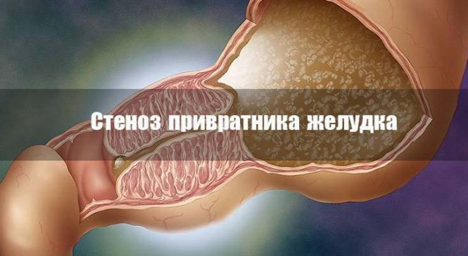Стеноз привратника желудка: операция или медикаментозное лечение?